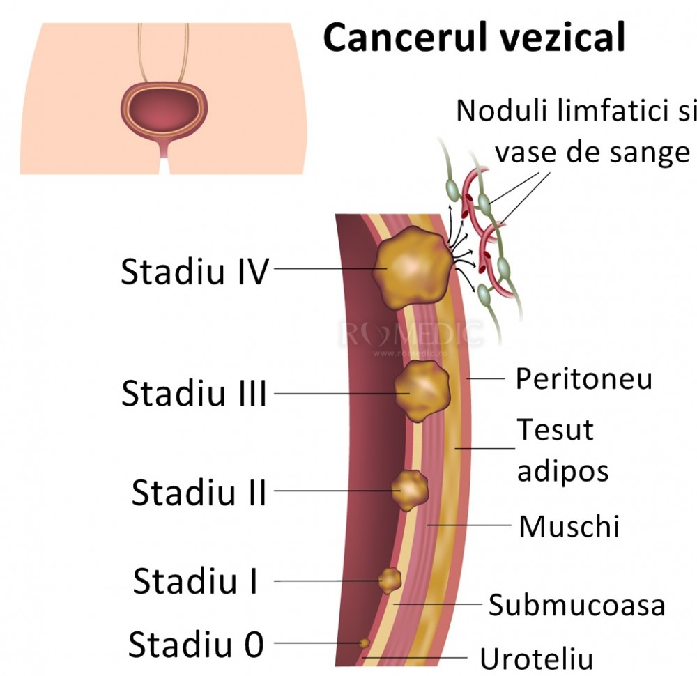 cancer vezica urinara evolutie paraziții sunt exemple de organisme