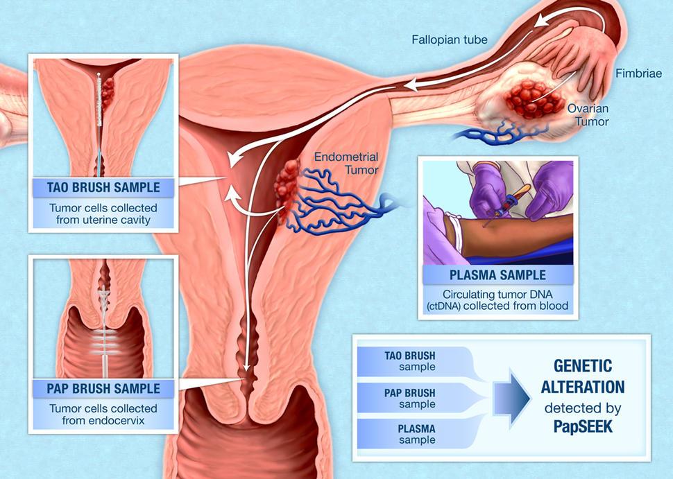 cancerul de endometru stadializare tinctura din papiloame