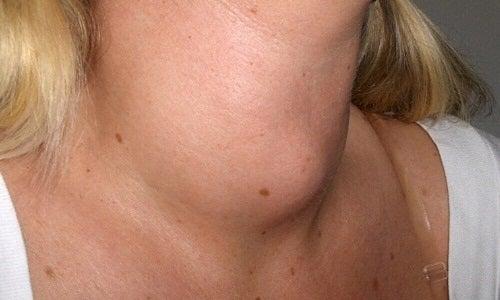 cancerul in gat la femei Se elimină papiloamele cu azot lichid?