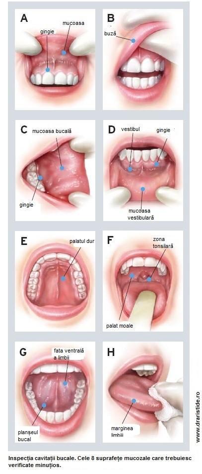 Cancer oral - cauze, simptome, tratament