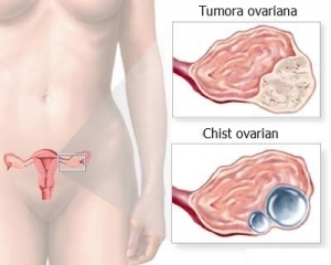 cancerul ovarian doare