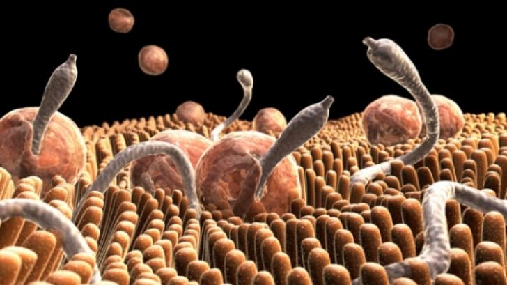 cauzele teniozei descrierea giardiozei