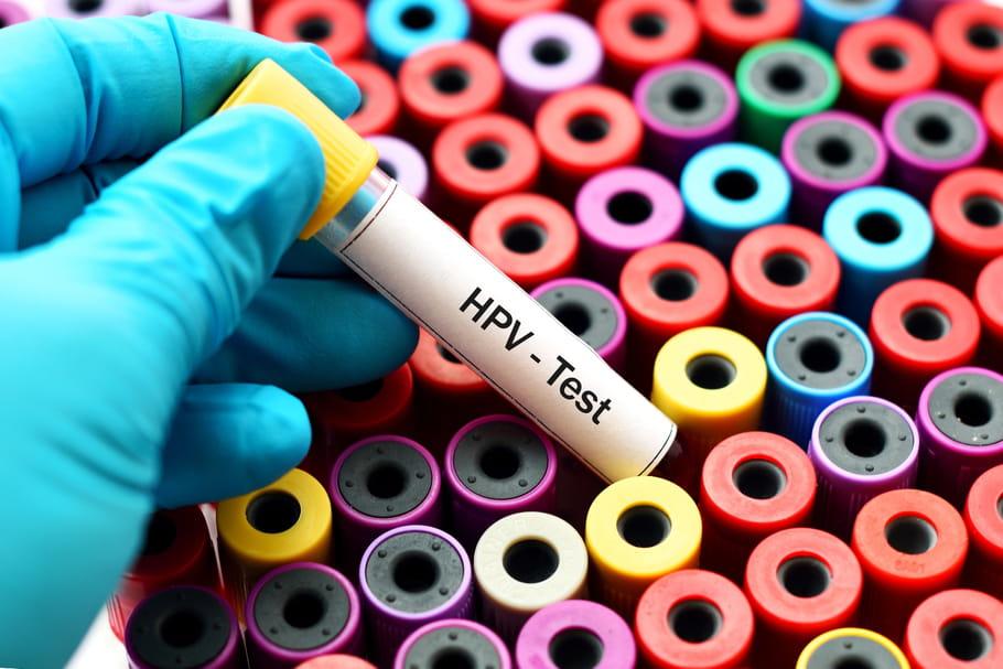 Papillomavirus homme depister, Hpv homme depistage