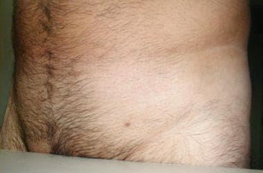 Cauzele apariției, tratamentului și fotografiei verucilor genitale pe buzele femeilor