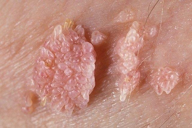 hpv impfung mit 25 la oameni, viermele a