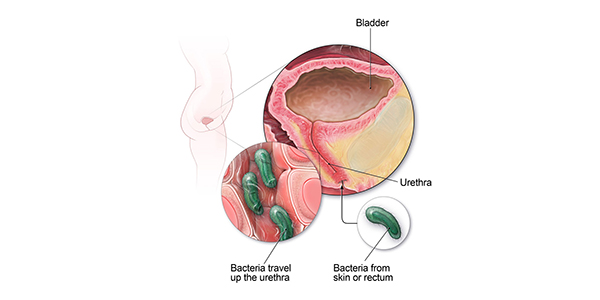 Does hpv cause bladder infections - ceas-mana.ro, Can hpv cause bladder problems