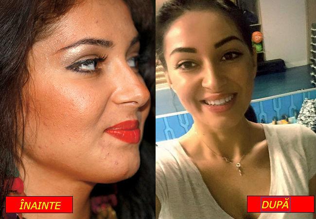 detoxifiere acnee