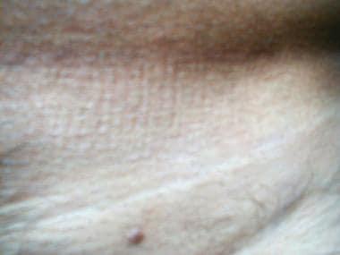 ce este condilomul pe corp cancer de piele romania