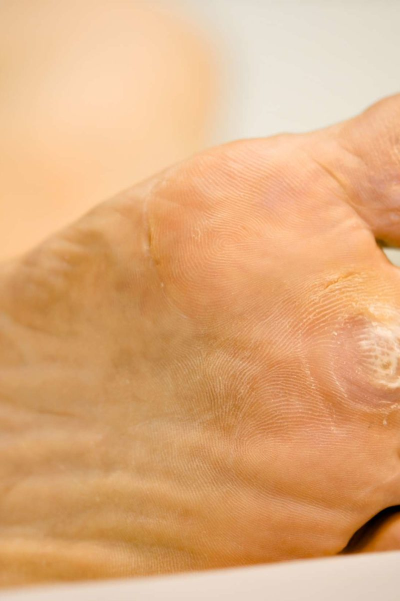 wart on foot during pregnancy