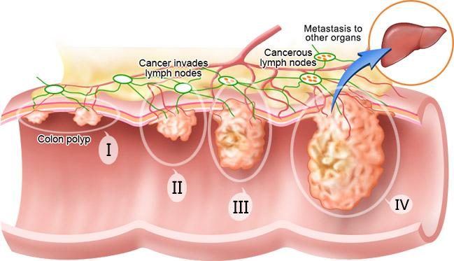 sarcoma cancer age măsuri de prevenire a pelinului