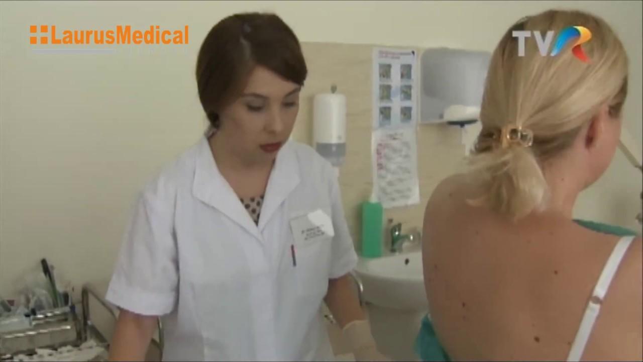 cum se îndepărtează papiloamele de la gât condilomul la femei este
