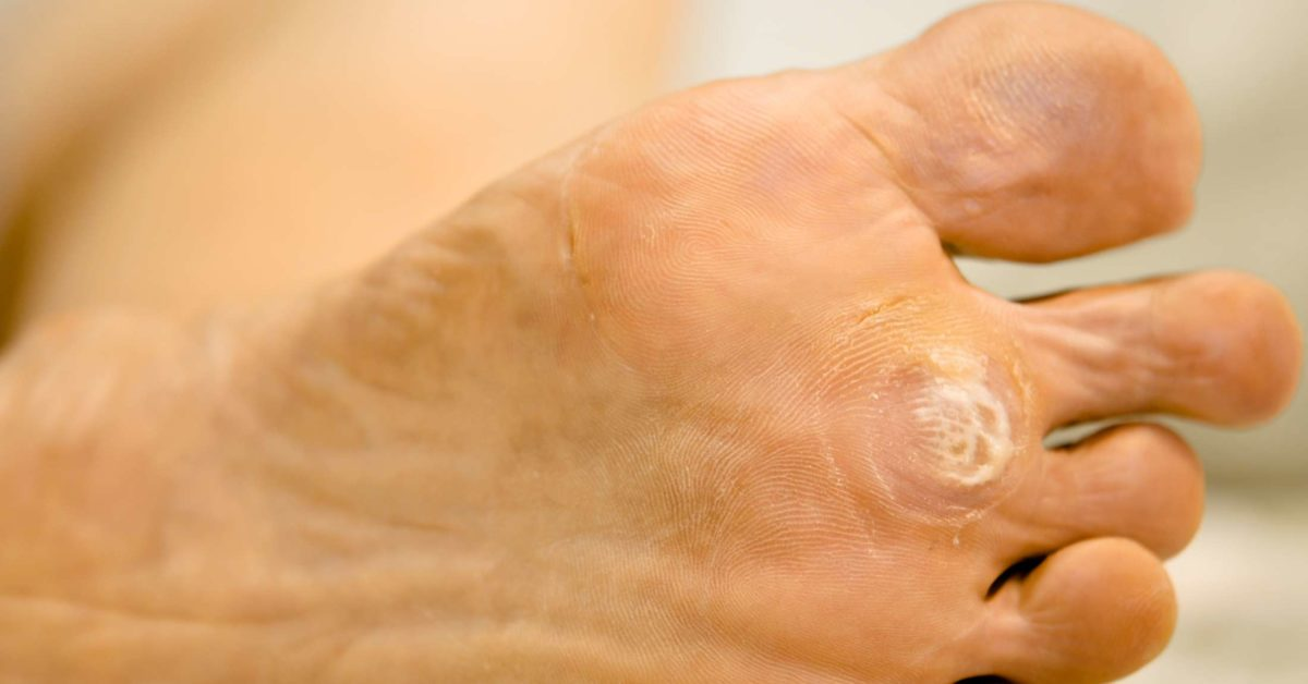 symptoms of papillomapapillomavirus humain risques
