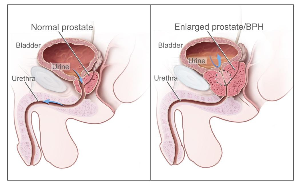 cancer de prostata quantos anos