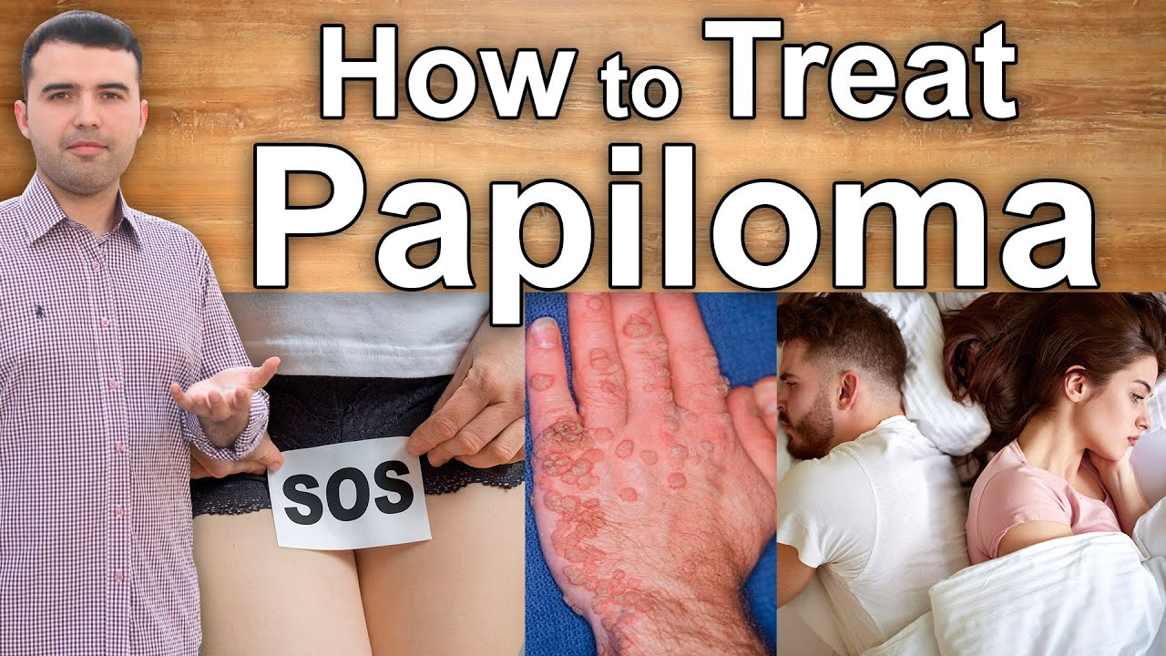 how to cure papiloma