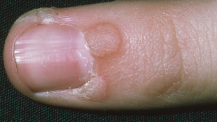 Wart on foot and finger, Wart treatment finger