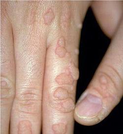papilomul provoacă tratament dieta papilomavirusului