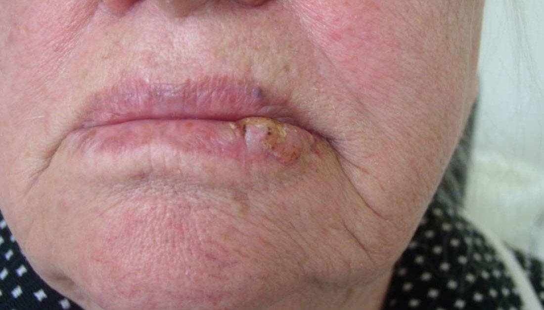 hpv upper lip nutriție pentru giardiază la copii
