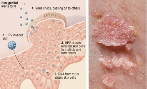 hpv warts high risk common warts on hands during pregnancy