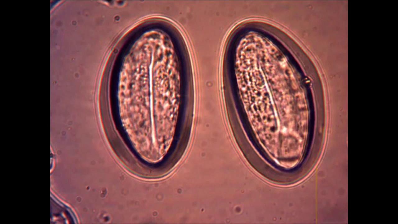 infecție cu viermi de pământ