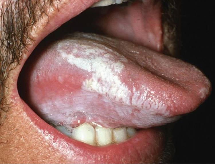 icd 10 papilloma of tongue