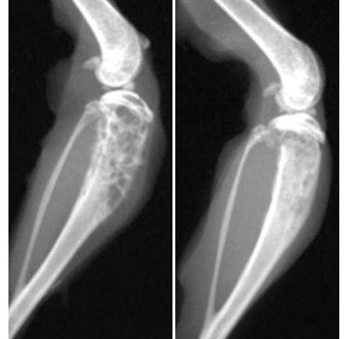 metastatic cancer in bone gaura de vierme pentru un copil