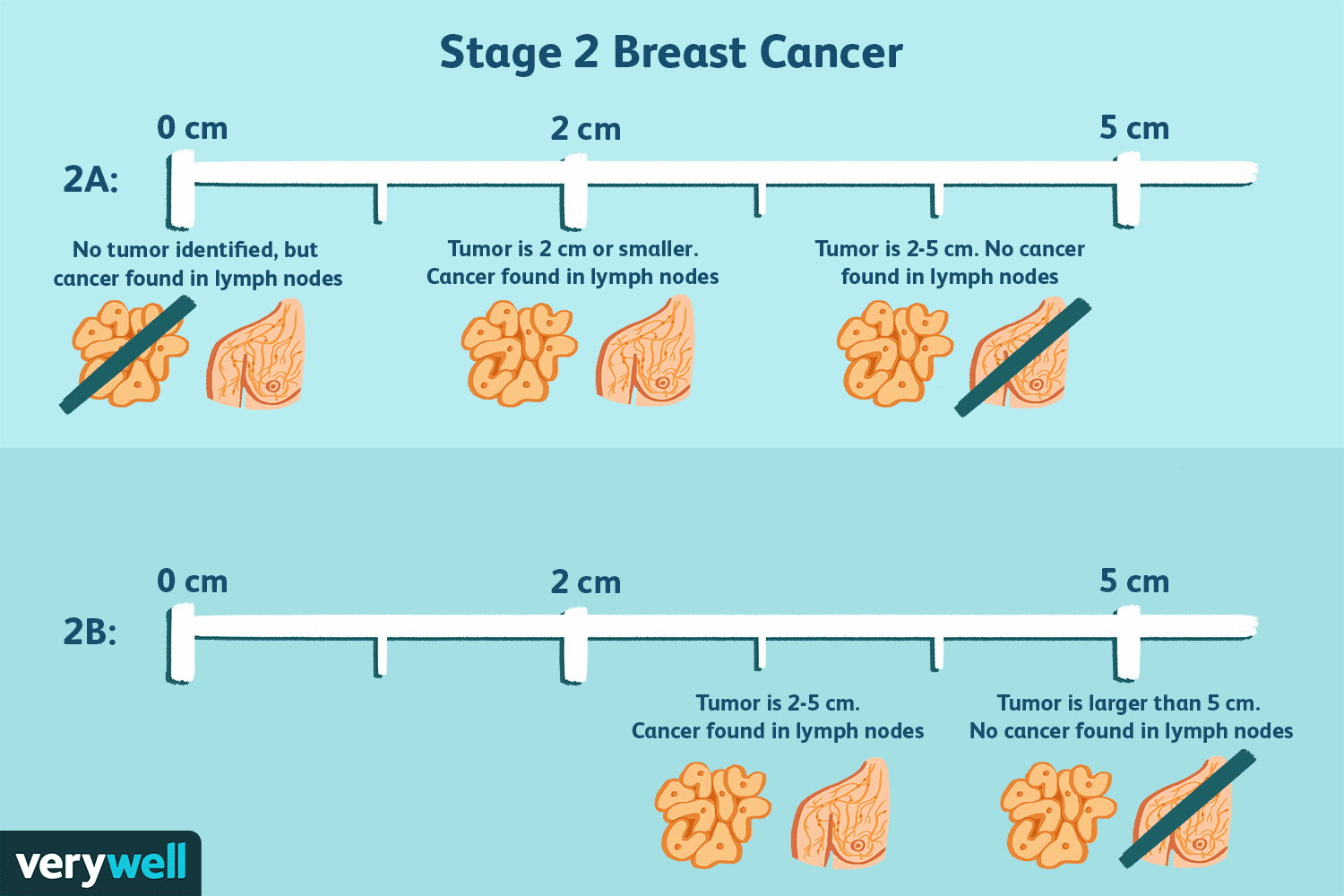 Cancer rectal has, Anal canal cancer diagnosis and treatment aspects
