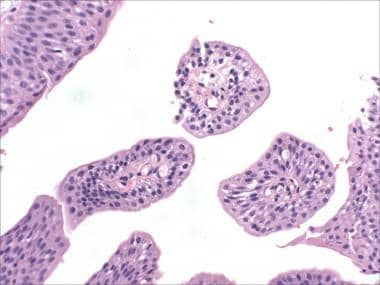 gastric cancer young
