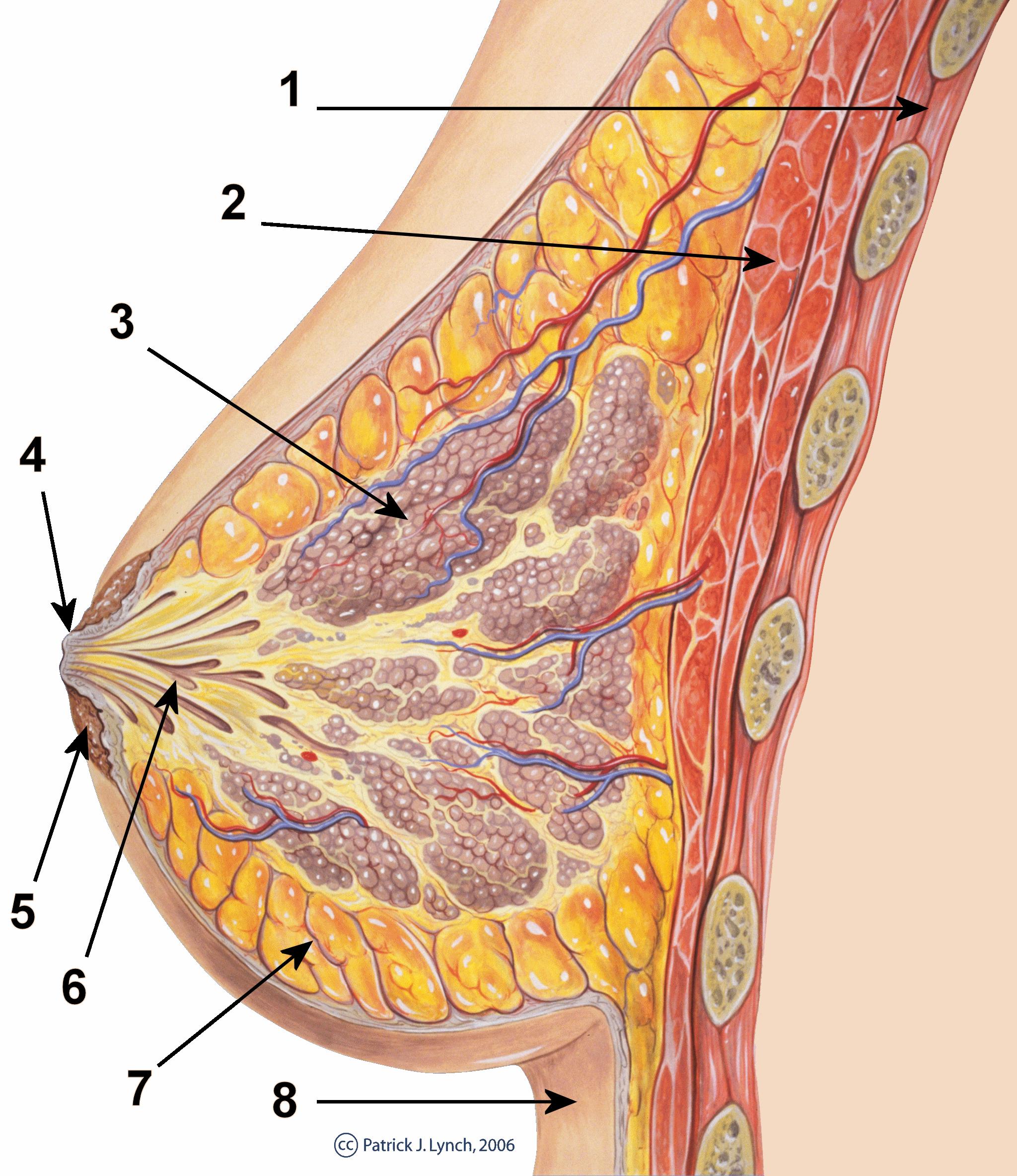 papilloma dei dotti del seno