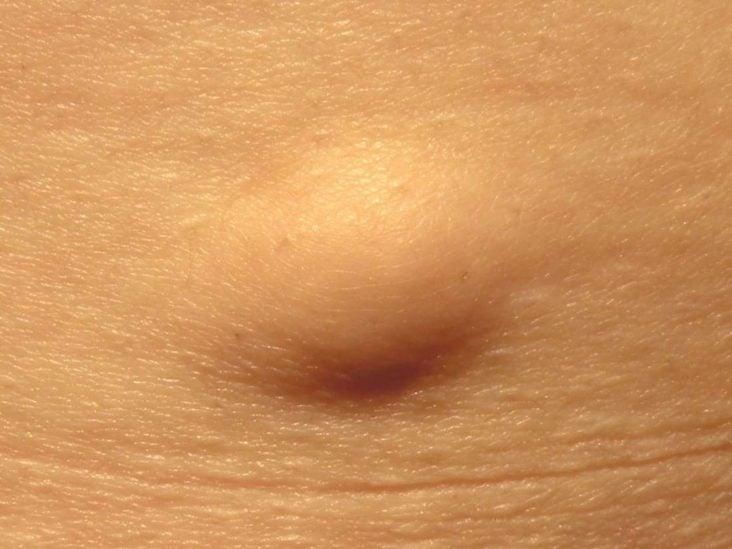 Laser treatment papillomas,