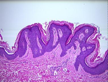 hpv mikrobu nedir giardia u psa zvelt