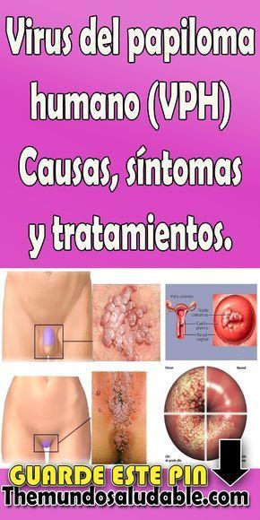 papiloma que es gastric cancer pathophysiology