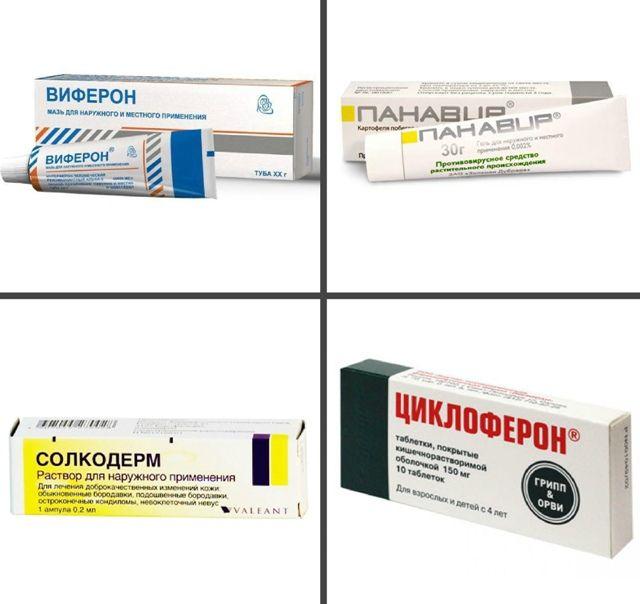 papilomele din uretra în tratamentul femeilor