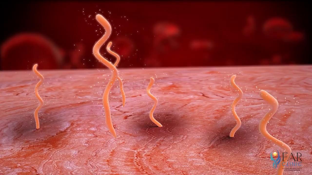 paraziții sunt viermi din corpul uman