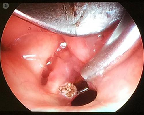 pharyngeal papillomas