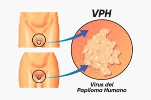 Virus del papiloma humano sintomas en mujeres imagenes - Que es el papiloma y sintomas