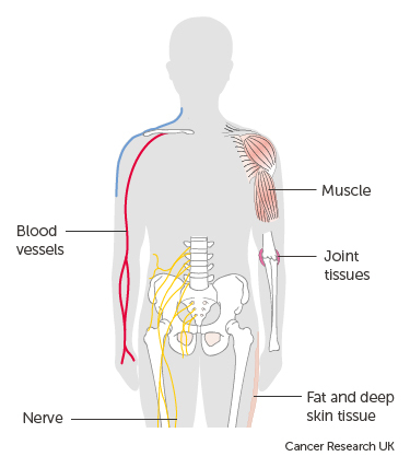 sarcoma cancer lump cancer via biliar intra hepatica