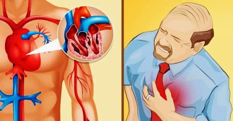 8 semne care pot anunţa atacul de cord