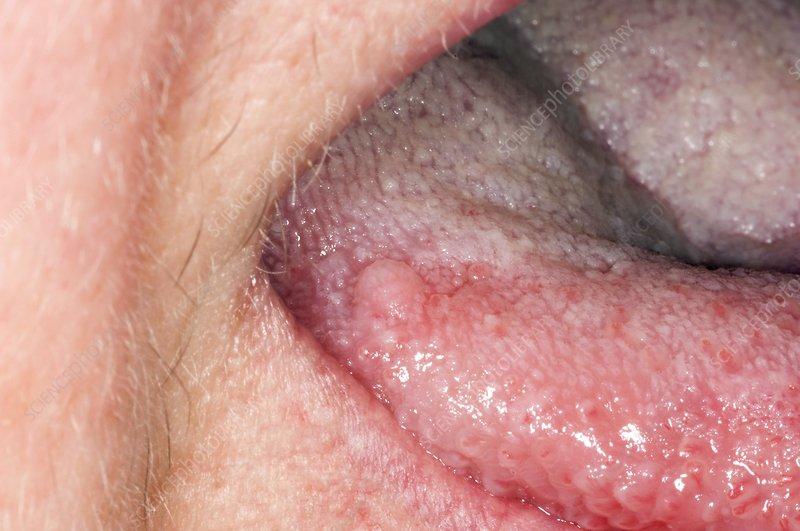 squamous cell papilloma hpv viermi la copii ce medicamente