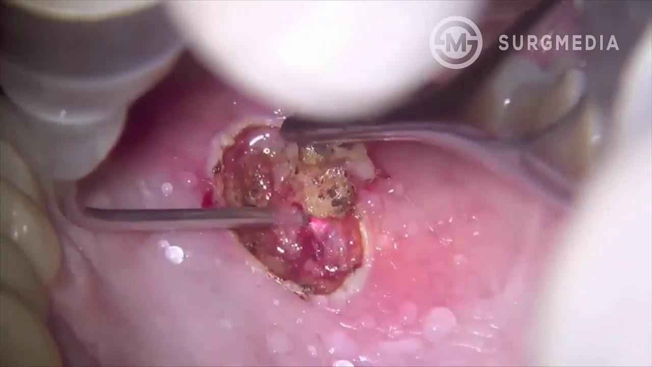 squamous papilloma removal