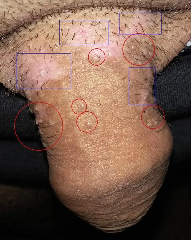 pinworm provoacă boală anemia 5 de hemoglobina