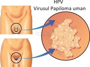 tratamentul cu virusul papilomatozei oxiuros picazon nariz