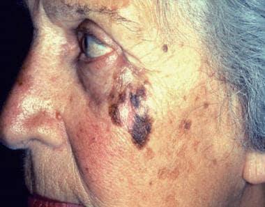 hpv outbreak symptoms tratamentul parazitar al colitei ulcerative