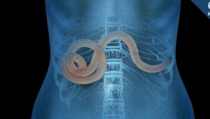 10 indicii ca organismul tau gazduieste paraziti - Exista viermi in corpul uman