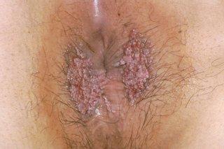 hpv la femei gravide cum se poate elimina virusul papiloma din organism